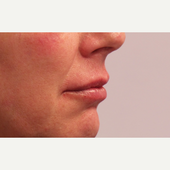 55-64 year old woman treated with Lip Augmentation after 3675125