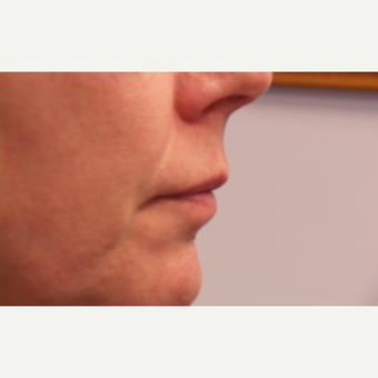 55-64 year old woman treated with Lip Augmentation before 3675125