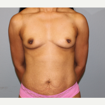 45-54 year old woman treated with Breast Augmentation before 3141580