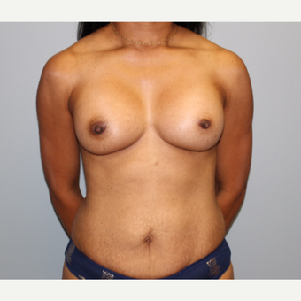 45-54 year old woman treated with Breast Augmentation after 3141580