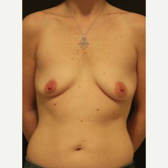 35-44 year old woman treated with Breast Augmentation before 3731905