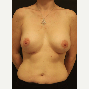 35-44 year old woman treated with Breast Augmentation after 3731905