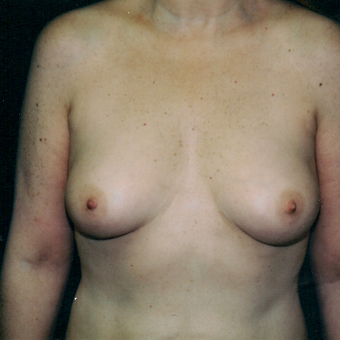 25-34 year old woman treated with Breast Augmentation before 3236127