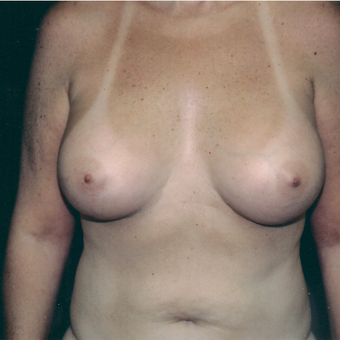 25-34 year old woman treated with Breast Augmentation after 3236127