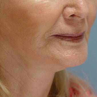 65-74 year old woman treated with Lower Face Lift after 1585680