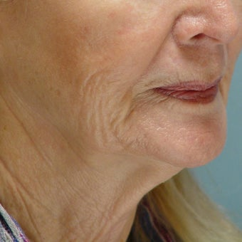65-74 year old woman treated with Lower Face Lift before 1585680