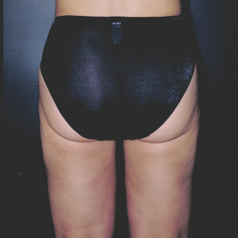 "Woman treated with Liposuction did not like the ""love handles"" and fullness of her inner/outer thigh after 3841261"