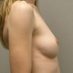 Breast Augmentation before 3681138