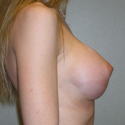 Breast Augmentation after 3681138