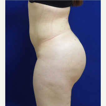 27 y/o female - 1500cc per side  Lipo abdomen, flanks, back with fat transfer to the buttocks after 3433799