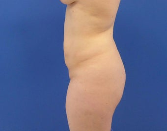 27 y/o female - 1500cc per side  Lipo abdomen, flanks, back with fat transfer to the buttocks before 3433799