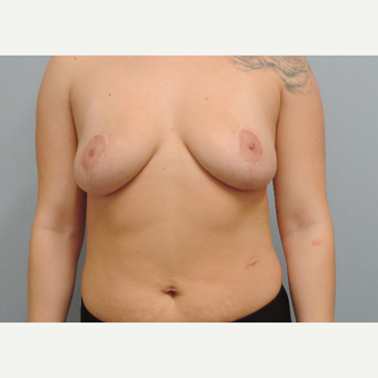 18-24 year old woman treated with Breast Implant Removal after 3483123