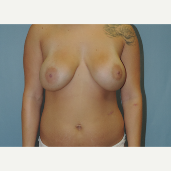 18-24 year old woman treated with Breast Implant Removal before 3483123