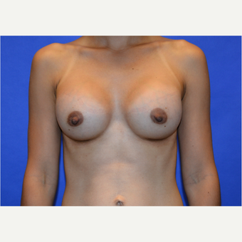 25-34 year old woman treated with Breast Augmentation after 3579859