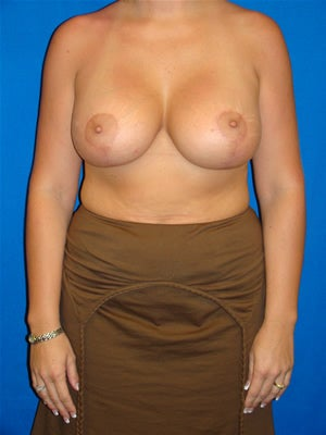 Breast Augmentation with Mastopexy after 109819