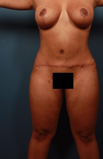 35-44 year old woman treated with Mommy Makeover after 1736569