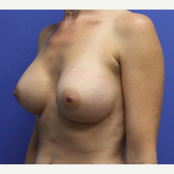 33 year old women - breast augmentation with armipit incision after 3809057