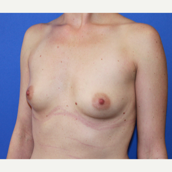 33 year old women - breast augmentation with armipit incision before 3809057