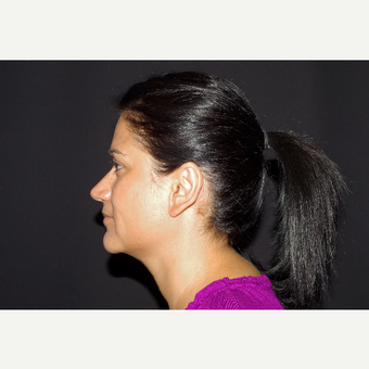 35-44 year old woman treated with Ear Lobe Surgery after 3055238