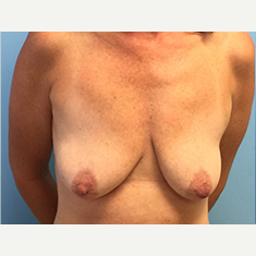 Breast Augmentation before 3278994