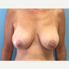 Breast Augmentation after 3278994