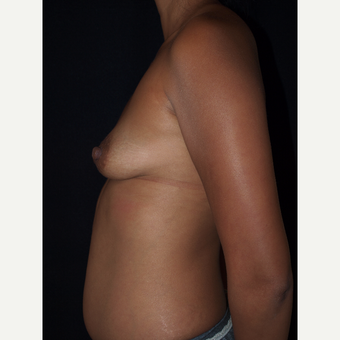 30 year old woman treated with Breast Lift with Implants before 3846554