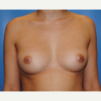 25 year old woman treated with Breast Augmentation, 350 cc moderate plus silicone, A to full C before 3623526