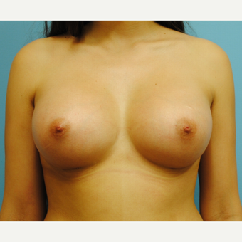 25 year old woman treated with Breast Augmentation, 350 cc moderate plus silicone, A to full C after 3623526