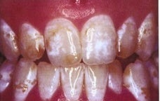 Teeth Whitening (Microabrasion) before 241820