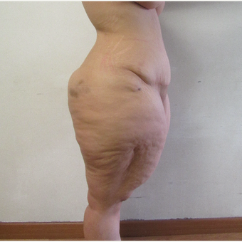 25-34 year old woman treated with Body Lift before 2815132