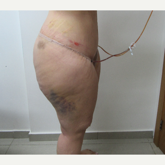 25-34 year old woman treated with Body Lift after 2815132