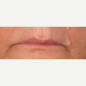 65-74 year old woman treated with Juvederm
