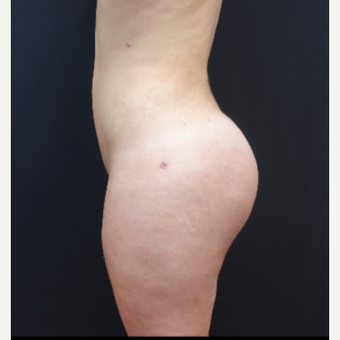 18-24 year old woman treated with Liposculpture after 3315586