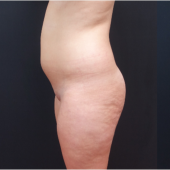18-24 year old woman treated with Liposculpture before 3315586