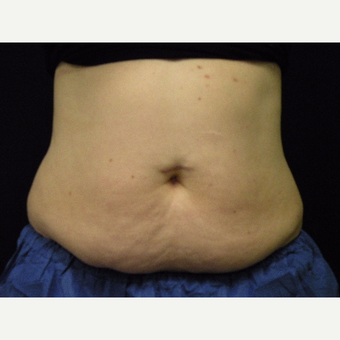 35-44 year old woman treated with CoolSculpting before 3679836
