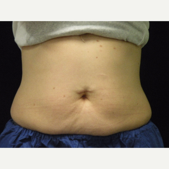 35-44 year old woman treated with CoolSculpting after 3679836