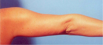 Arm Liposuction after 652123