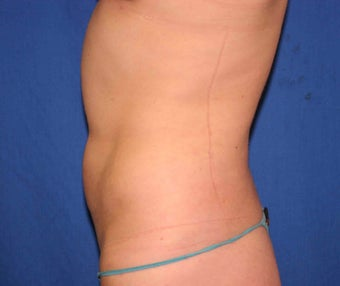 Young woman treated w/ Smartlipo to her abdomen and hips. 1361162