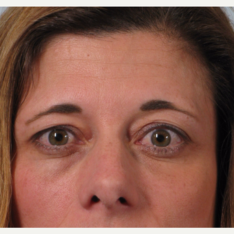 35-44 year old woman treated with Eyelid Surgery before 3261205