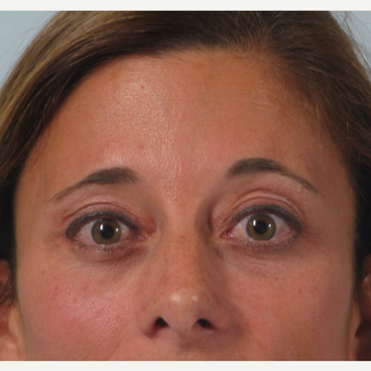 35-44 year old woman treated with Eyelid Surgery after 3261205