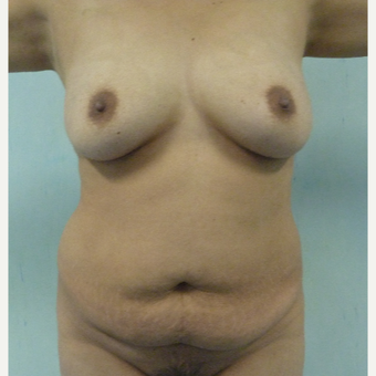25-34 year old woman treated with Mommy Makeover before 3288248
