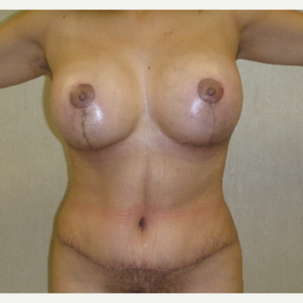 25-34 year old woman treated with Mommy Makeover after 3288248