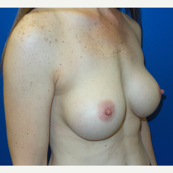 35-44 year old woman treated with Breast Augmentation after 3260594
