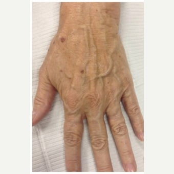 55-64 year old woman treated with Radiesse for hand rejuvenation