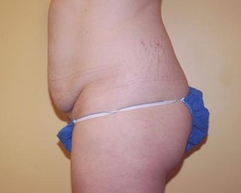 Tummy Tuck before 236152