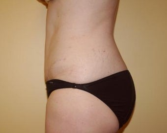 Tummy Tuck after 236152