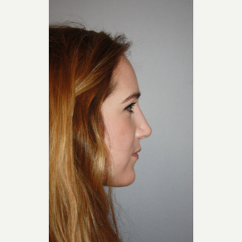 25-34 year old woman treated with Rhinoplasty for dorsal hump after 3406546