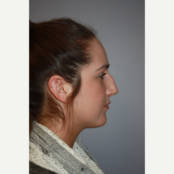 25-34 year old woman treated with Rhinoplasty for dorsal hump before 3406546
