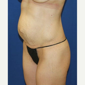Tummy Tuck before 2436424