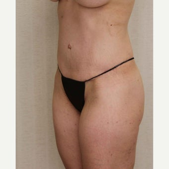 Tummy Tuck after 2436424